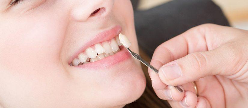 Carillas dentales - Sonrisas para todos