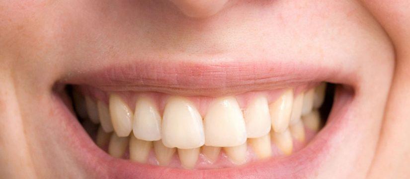Dientes torcidos - Sonrisas para todos