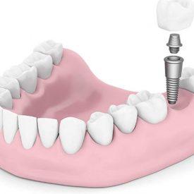 implante dental sonrisaparatodos 1 275x275 - Tratamientos