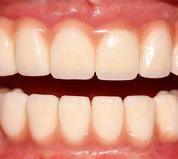 implantes - Sonrisas para todos