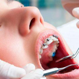ortodoncia sonrisa para todos 1 275x275 - Tratamientos