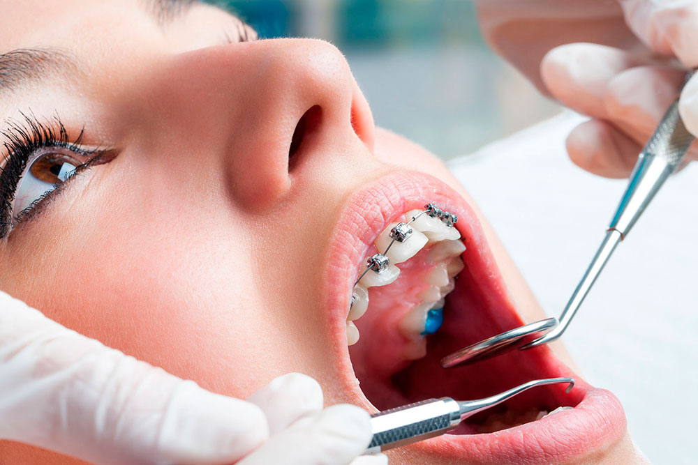 Tratamiento de Ortodoncia en Costa Rica