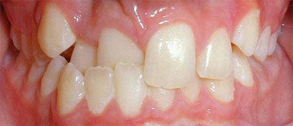 Before-Ortodoncia