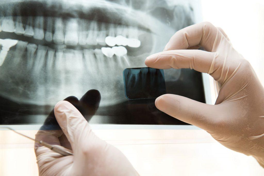 Radiografía - Sonrisas para todos