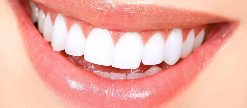 Sonrisa Mujer- Dentistas en costa rica - Sonrisas par todos