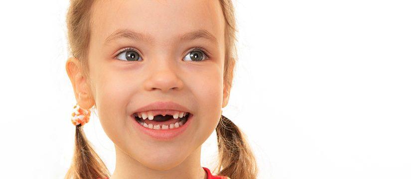 """dientes leche 825x360 - ¿Edad del """"Patito Feo""""?"""