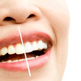 Estetica dental 275x275 - Tratamientos